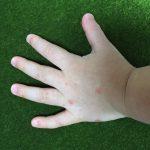 手足口病の発疹(手)
